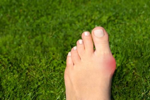 足の指を広げる美容法も!? 足の指を広げるおすすめグッズ4つ